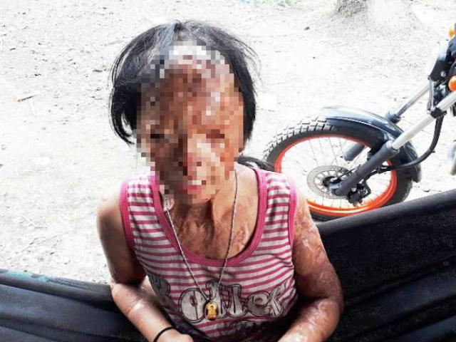 Bị tạt axit năm 7 tuổi vì mẹ giật chồng người khác, cuộc sống của bé gái giờ ra sao?