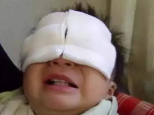 Món đồ chơi nhiều trẻ em Việt thích khiến bé trai 9 tuổi bị thủng mắt