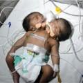 Tin tức - Xót xa bé sơ sinh có 2 đầu liền thân vừa chào đời