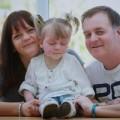 Tin tức - Anh: Bé gái 2 tuổi có vết chàm ở mặt hiếm gặp