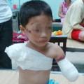 Tin tức - Bé trai 5 tuổi bị gấu nuôi cắn đứt 2 tay