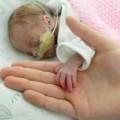 Tin tức - Sức sống thần kỳ của em bé chào đời chỉ nặng 700g