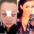 Làm đẹp - Thành hot girl sau khi bị đánh dập mũi