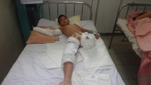 Thương tâm cậu bé mồ côi cha bị tai nạn phải cưa chân-1