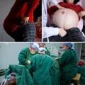 Bà bầu - Ngắm trọn 9 tháng song thai của mẹ U50