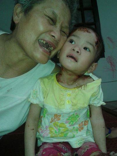 Hành trình sống sót kỳ diệu của bé 'có giòi' ở chùa Bồ Đề-3