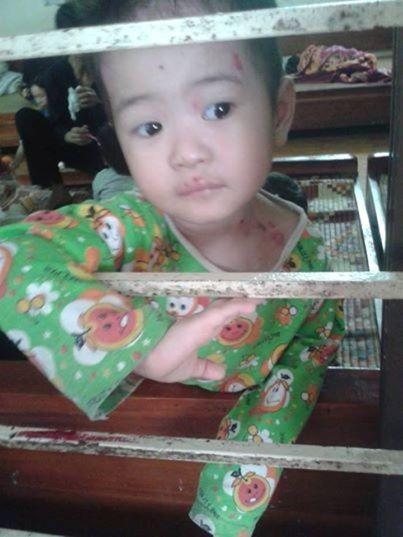 Hành trình sống sót kỳ diệu của bé 'có giòi' ở chùa Bồ Đề-2