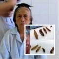 Tin tức - Kinh hãi gắp được 20 con giòi lúc nhúc trong mũi bệnh nhân
