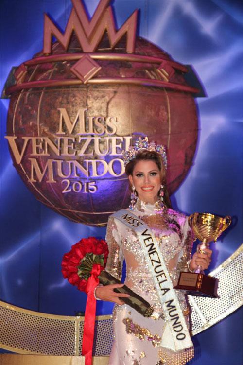 can canh nhan sac kieu diem cua tan hoa hau venezuela - 4