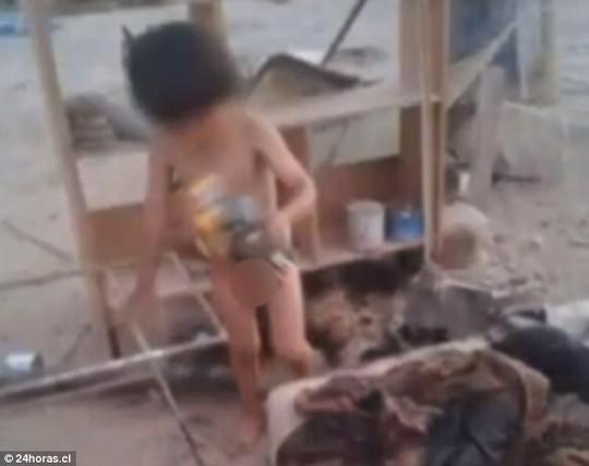 Chile: Bé 2 tuổi sống sót nhờ được chó cho bú-1