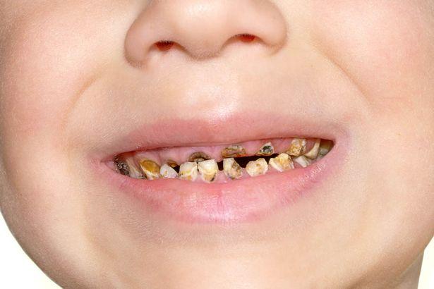 Ăn nhiều nho khô, trẻ vô tình bị hỏng hàm răng xinh-2