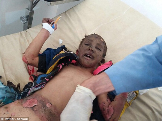Chấn động hình ảnh em bé napalm Syria bỏng nặng-2