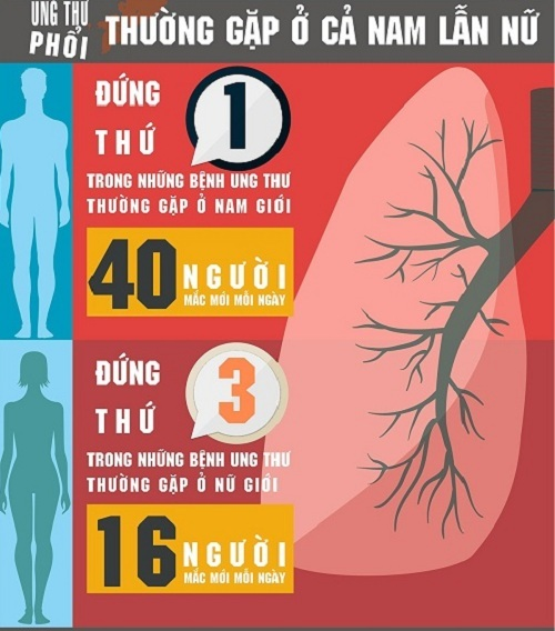 [infographic] toan canh ve can benh ung thu khien 56 nguoi mac moi ngay - 2