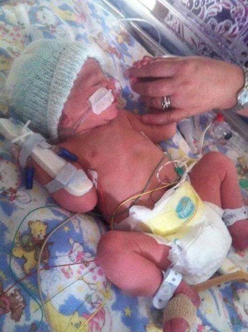 Bé sơ sinh trở về từ cõi chết sau khi bác sĩ thông báo đã chết lưu - 1
