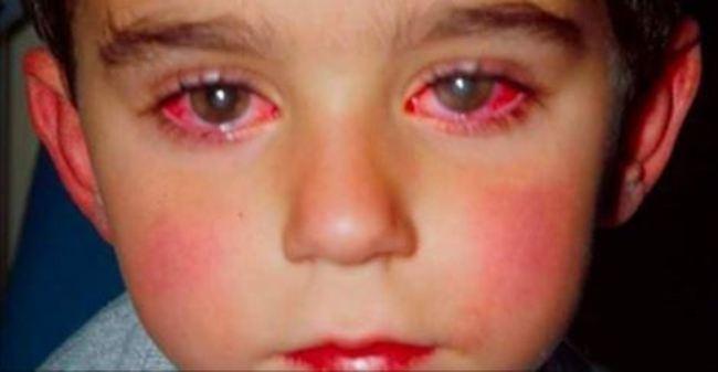 Vì chiếc bút đồ chơi quen thuộc cậu bé 14 tuổi suýt mù cả đôi mắt