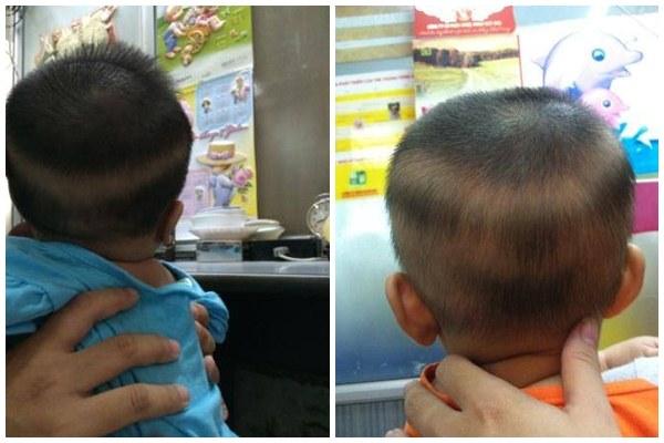 Cách điều trị rụng tóc vành khăn ở trẻ nhỏ đơn giản và chuẩn nhất theo bác sĩ tư vấn - 1