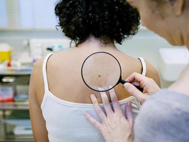 7 dấu hiệu ung thư da mà chúng ta không thể nhìn thấy bằng mắt thường