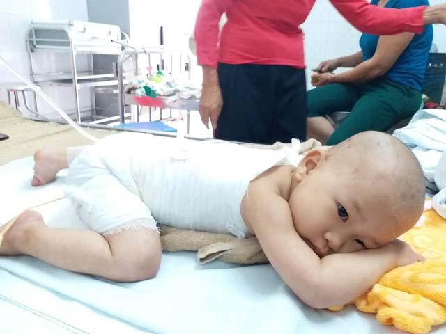 Hướng dẫn rửa và thay băng điều trị vết bỏng dưới 10% diện tích cơ thể trẻ em