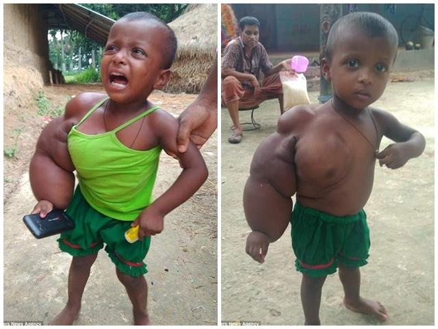 Bé gái 2 tuổi mắc bệnh lạ khiến tay phải sưng phù, nặng gần 3kg