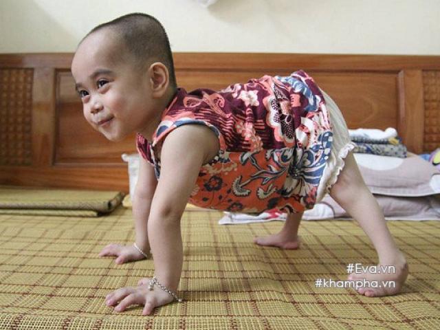 Em bé đi bằng 4 chân, sống nhờ vào những chiếc bao cao su và băng vệ sinh