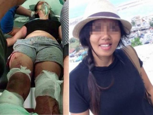 Nghi ngờ vợ lăng nhăng, chồng chém đứt bàn chân vợ trước mặt 2 con nhỏ