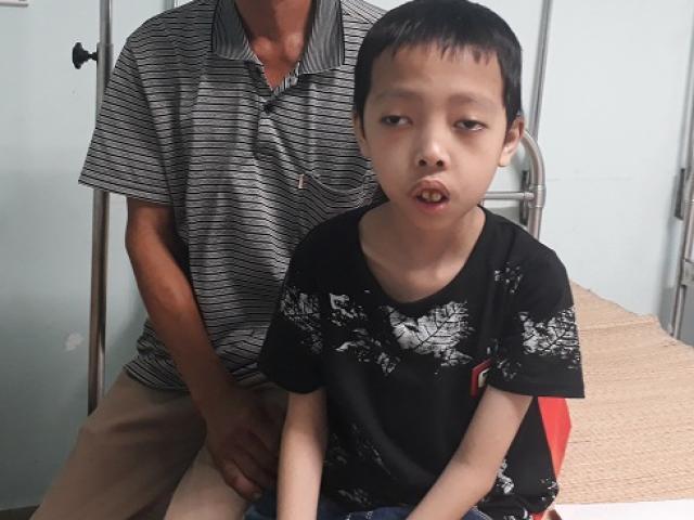 Bé trai 13 tuổi như đứa trẻ lên 5, càng lớn cơ thể càng bị tàn phá vì bệnh lạ