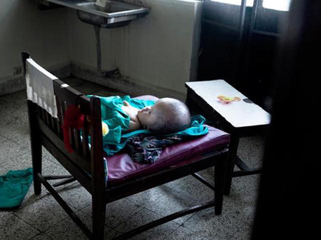 Bé gái mắc não úng thủy bị mẹ đẻ bỏ rơi qua đời khiến nghìn người xúc động
