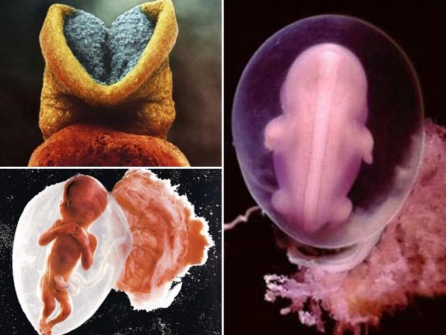Bao năm rồi nhưng đây vẫn là bộ ảnh xuất sắc nhất về thai nhi trong bụng mẹ
