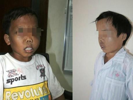Mỗi năm Việt Nam có hơn 2000 em bé chào đời mắc căn bệnh gây biến dạng khuôn mặt