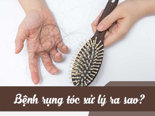 Rụng tóc xử lý thế nào?