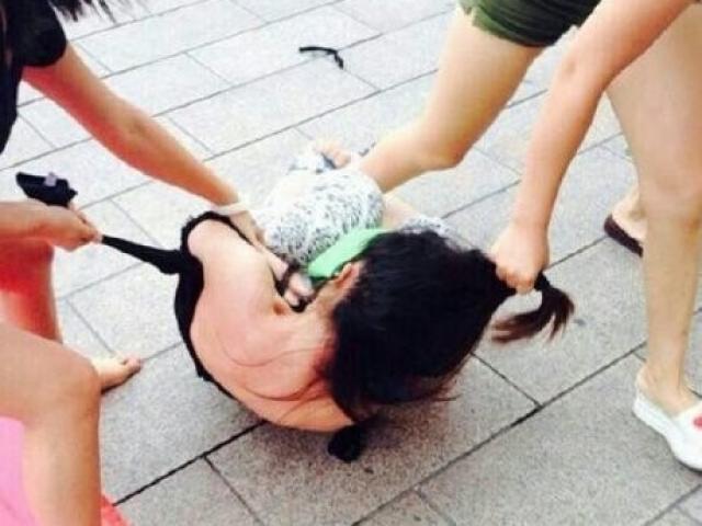Kinh hoàng thai phụ trẻ bị người yêu cũ của bạn trai đánh ghen, đổ nước nóng vào vùng kín