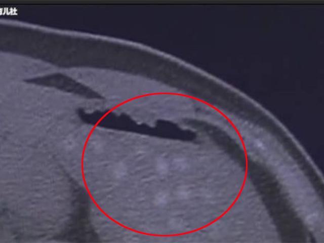 Hàng chục vật lạ xuất hiện trong ổ bụng cậu bé 13 tuổi sau khi uống 2 cốc trà sữa
