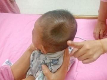 Bé 8 tháng bị di chứng do ngã từ giường xuống đất: 3 mức độ cấp báo mẹ phải biết