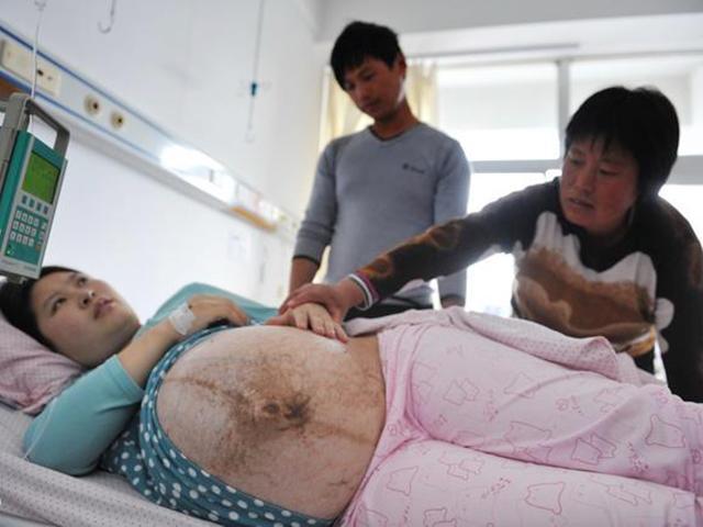 Mang thai đôi biến thành bốn, ngày đi sinh bà mẹ khiến cả bệnh viện choáng