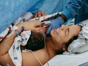 Lý do đặc biệt vì sao các ca sinh mổ nên diễn ra vào buổi sáng?