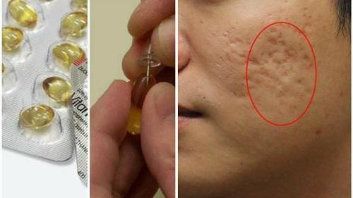 Có những cách trị sẹo rỗ này, mặt lỗ chỗ đến mấy cũng được san bằng chỉ sau 2 tuần - 4