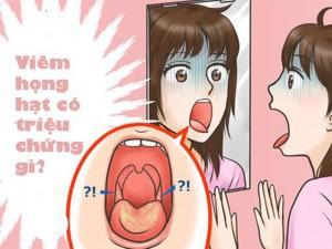 Triệu chứng viêm họng hạt là gì?