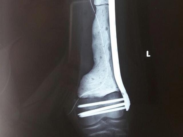 Con kêu đau chân nhưng chủ quan không khám, mẹ đau đớn khi biết con bị ung thư xương