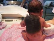 Mẹ sinh con da thú vì thói quen liều lĩnh nhiều người thường làm khi mang bầu