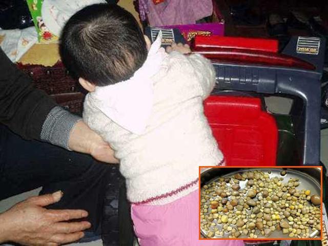 Bác sĩ nói bé gái hai quả thận đầy đá vì mẹ ham bổ sung dinh dưỡng theo cách này