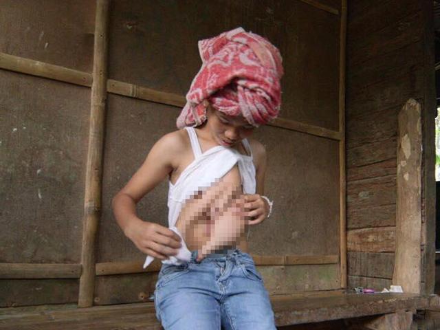 Mẹ không khám khi mang thai, con gái có chị em song sinh đầy đủ tay chân dính trước ngực