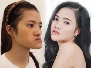 """Những cô gái, chàng trai Việt """"lột xác"""" nhờ thẩm mỹ có sợ sinh con như bản gốc?"""