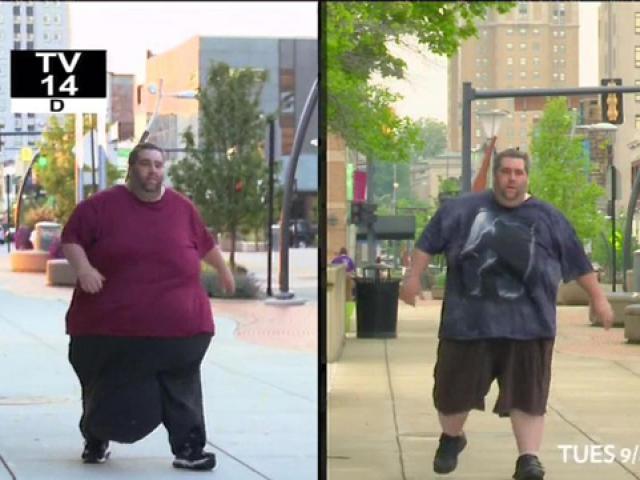 Bi kịch của người đàn ông có của quý khổng lồ, nặng gần 32kg