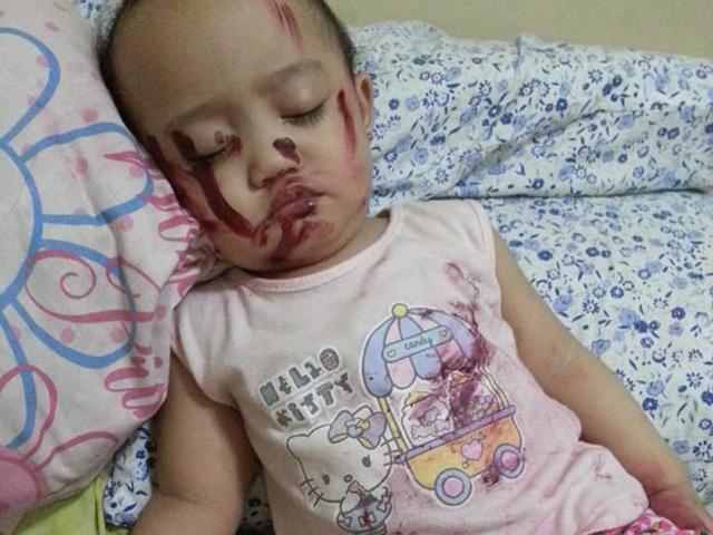 Tỉnh dậy giữa đêm thấy con gái ngất lịm với nhiều vết đỏ trên người, mẹ đau tim suýt ngất