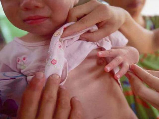 Bé gái 2 tuổi đã phát triển ngực vì bà thường xuyên cho uống loại nước không nên uống