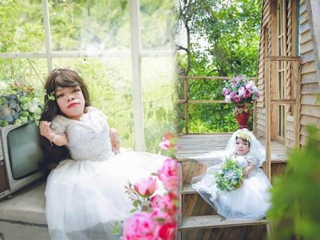 Cảm động trước bộ ảnh cưới của cô dâu Hải Phòng cao 70cm, nặng chỉ 13kg