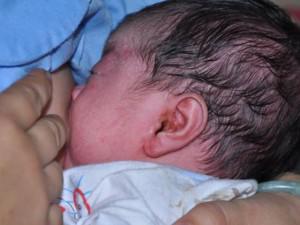 Con 3 tuổi liên tục gãi tai, mẹ tá hỏa khi bác sĩ kết luận cây mọc trong tai
