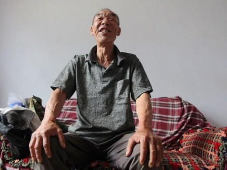 Bí quyết chiến thắng ung thư thực quản của lão nông nghèo sau ca phẫu thuật 16 năm