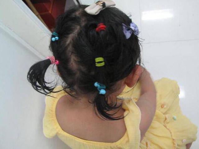 Ham buộc tóc làm đẹp cho con gái, mẹ nào ngờ khiến bé rụng tóc, tổn thương da đầu