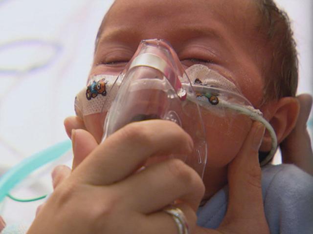 Dấu hiệu viêm phổi ở trẻ sơ sinh sớm và chính xác nhất